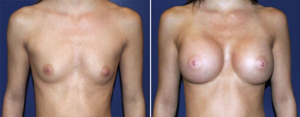 Fayetteville Breast Augmentation