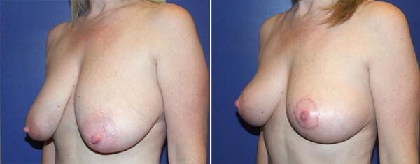 Fayetteville Breast Lift