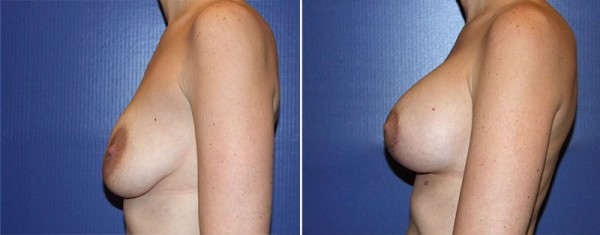 Fayetteville Breast Lift with Augmentation
